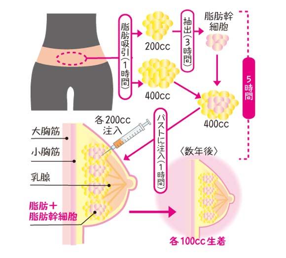 脂肪注入法