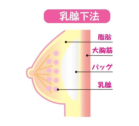 豊胸バッグ挿入法の「乳腺下法」