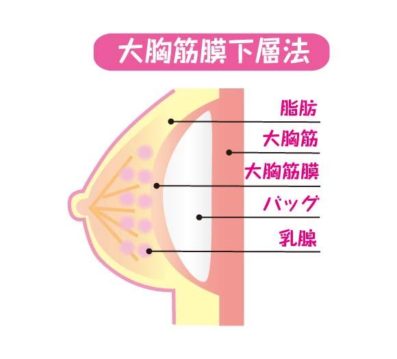豊胸バッグ挿入法の「大胸筋膜下層法」