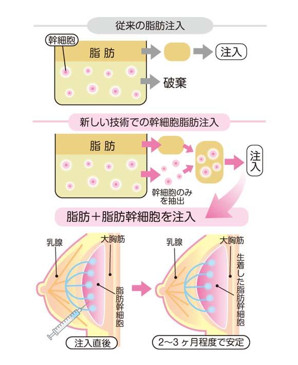 新しい技術の脂肪注入法