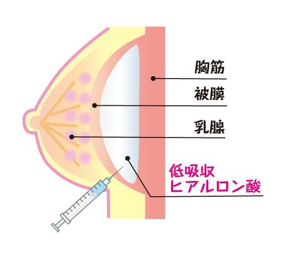 低吸収ヒアルロン酸の注入