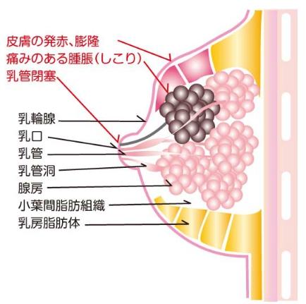 乳腺炎の症状
