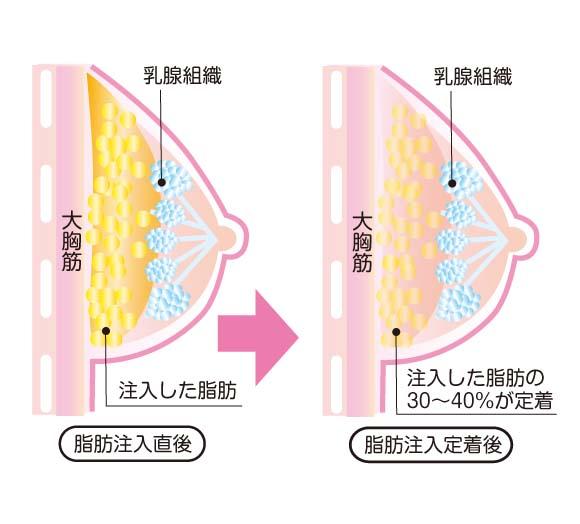 吸引した脂肪は、麻酔液を取り除いた後にバストの中に注入されます
