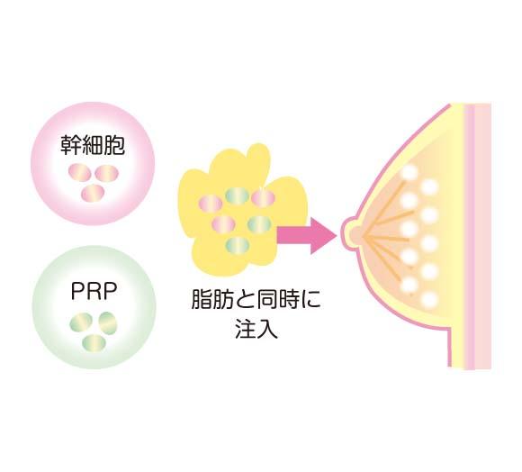 有用な成分をプラスして体に戻す、幹細胞豊胸術