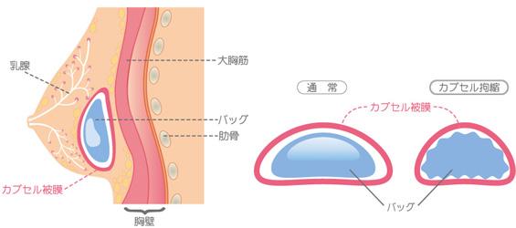 カプセル拘縮とカプセル皮膜
