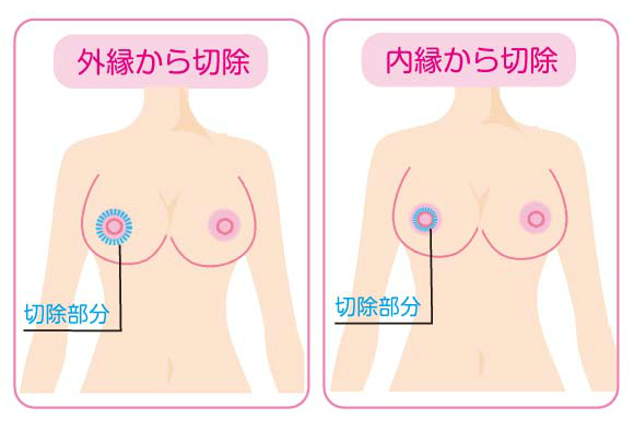乳輪縮小の切除方法