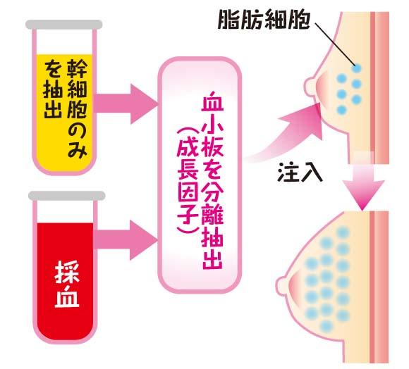 脂肪注入法とPPPジェル注入法を組み合わせ