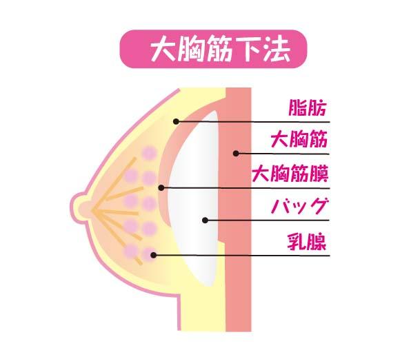 豊胸バッグ挿入法の「大胸筋下法」