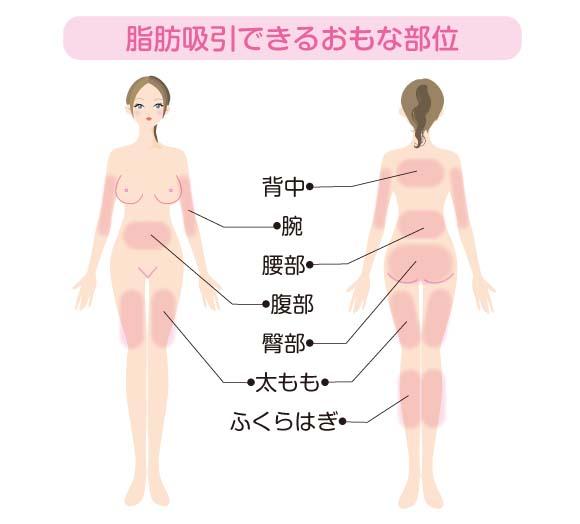 脂肪吸引できる部位