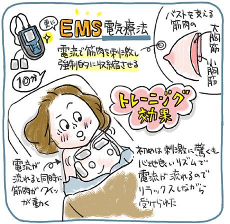 EMS電気療法