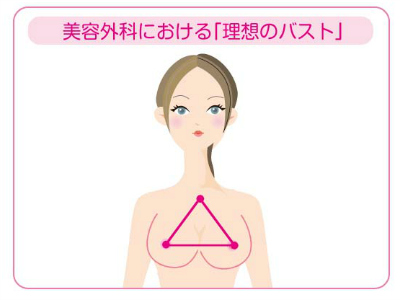 美容外科における理想のバスト