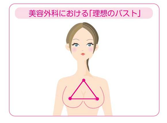 美容外科における「理想のバスト」