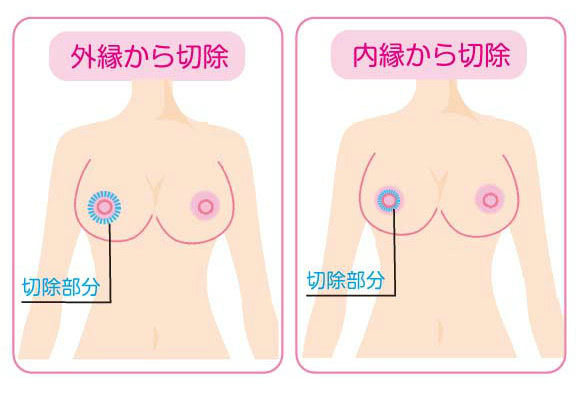 乳頭縮小手術の切除方法