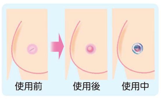 陥没乳頭への対処法