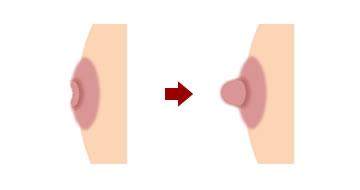 陥没乳頭の症状がある乳首