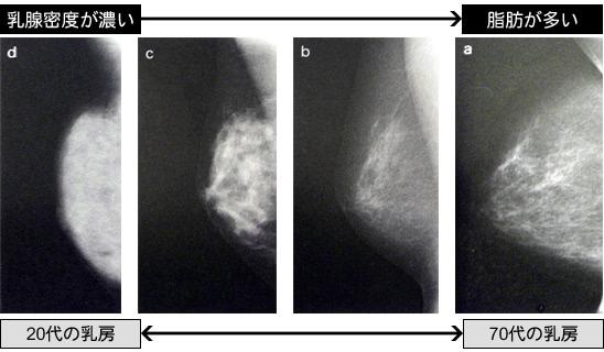 マンモグラフィー検査の画像