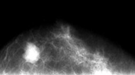 乳がんのレントゲン写真