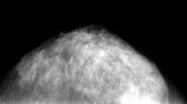 乳腺症のレントゲン写真