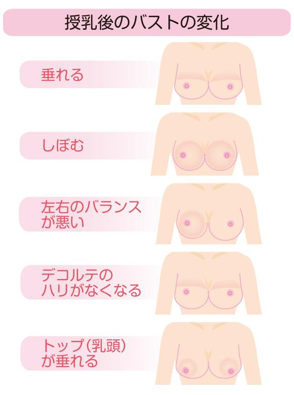 授乳後のバストの変化