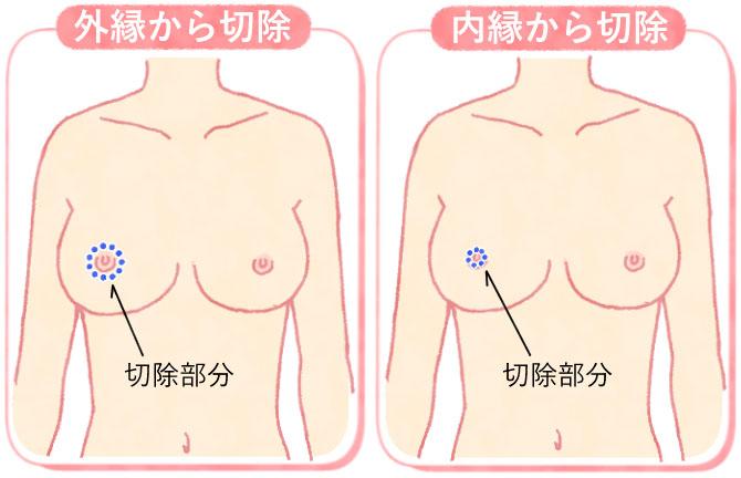 乳輪縮小術で切除する部分