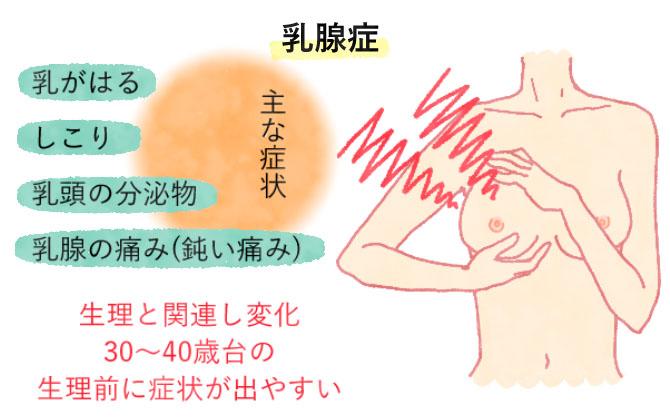 乳腺症の症状