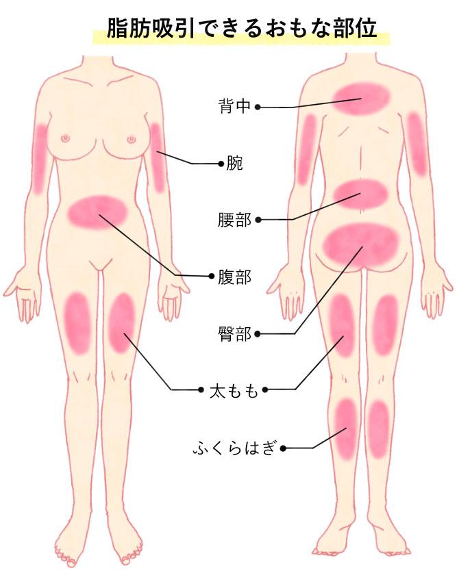 脂肪吸引できる主な部位