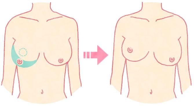 胸を小さくする手術