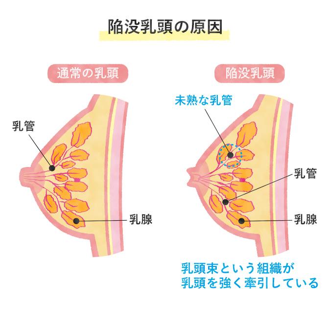 陥没乳頭の原因