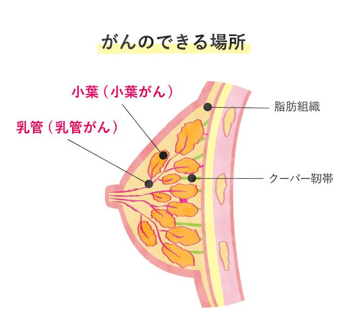 乳がんのできる場所