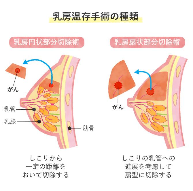 乳房温存術